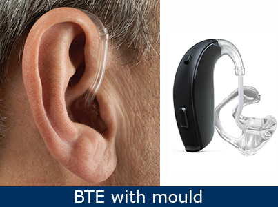 behind-the-ear-with-mould