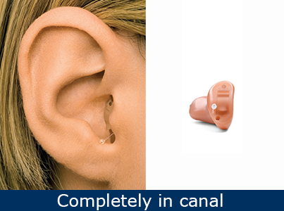 completely-in-canal