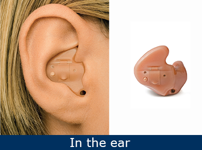 in-the-ear-ite