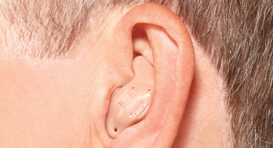 Inside-the-ear - In the ear - Dilworth Hearing