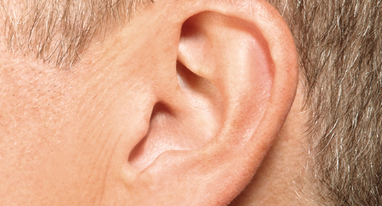 Inside-the-ear - Invisible - Dilworth Hearing